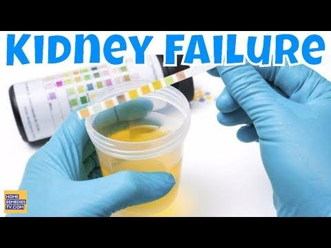 #HealthyLivingTips 8 KIDNEY FAILURE Crucial Signs Most People Ignore! Warning Signs... #NaturalCure #Health