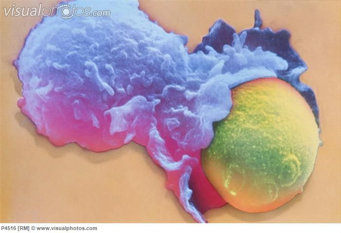 White blood cell englufing yeast cell. (Phagocytosis. Colored Scanning Electron Micrograph (SEM) of a cultured lymphocyte phagocytosing (eng...