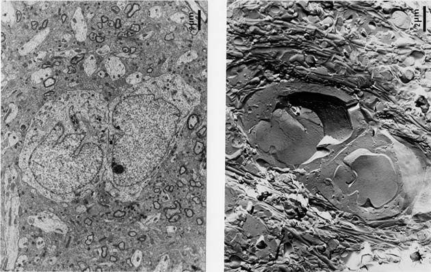 Membrana plasmática. Izquierda MET, derecha criofractura.