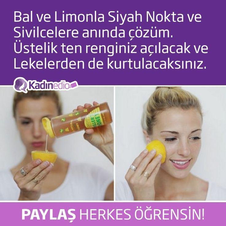 Bal ve Limonla Siyah Nokta ve Sivilcelere anında çözüm @kadinedio #kadın #sağlık #maske #peeling