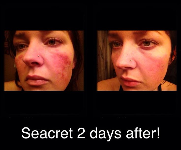 Results from seacret m4 mask. Do you or someone you know have Rosacea? www.seacretdirect.com/ckrus