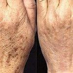 Elimine as manchas de idade com um remédio caseiro