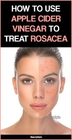 How to Use Apple Cider Vinegar to Treat Rosacea? Rosacea is a chronic condition in which is characterised by red face due to persistent redness, red s...