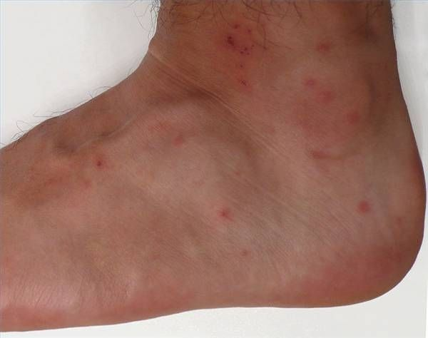 Home Remedy for Chigger Bites