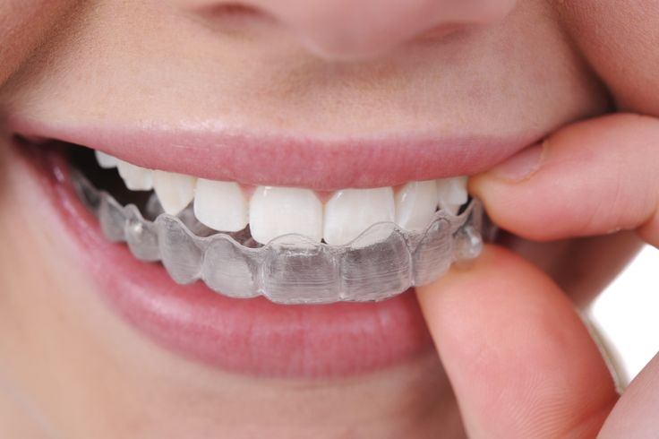 Invisalign® can help you get the great smile you've always wanted because it's…invisible, so no one can tell you're straightening your teeth.