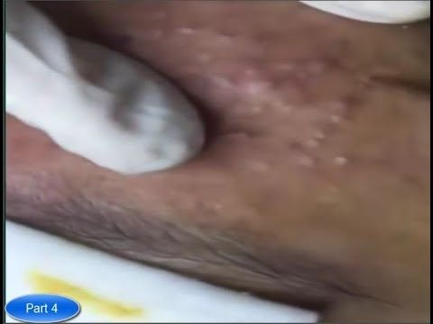 Cystic Acne, Pimples And Blackheads Extraction Acne Treatment On Face Pa...