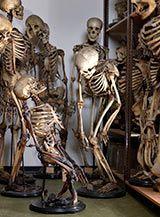 Museum Vrolik, Amsterdam, Netherlands (foto: Door ziekten misvormde skeletten)