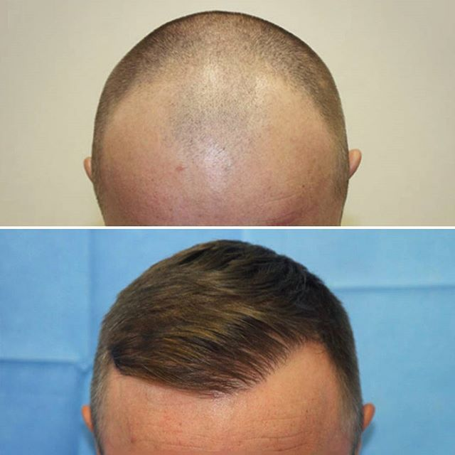 •Before and After•  We transplanted 2607 grafts with a total of 6011 hairs for this hair line transformation. 👍  Don't let receding hairlines define you~ contact us today for a consultation 📩📞 #thinninghair  #balding #hairtransplant  #hairloss #hairlosstreatment  #hairrestoration #hairsurgery #fue #follicularunitextraction  #beforeandafter #transformation