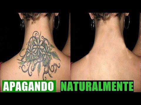 Como Apagar Tatuagem - Removendo Sua Tattoo Naturalmente