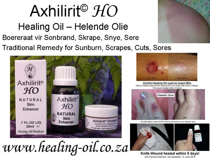 Axhilirit HO Skin Enhancing Healing Oil and Ointment for minimizing of scarring due to broken skin.  www.healing-oil.co.za