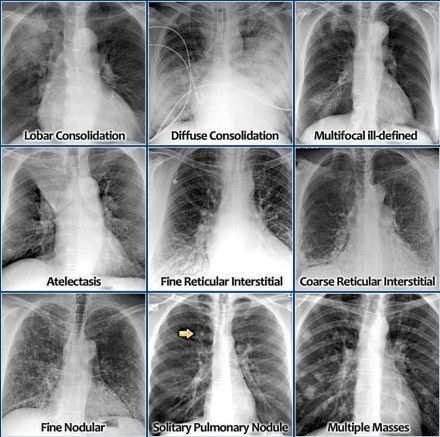 Diffuse ground-glass opacity of the lung A guide to