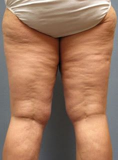 Tips Aggregator: 3 Effective Home Remedies for Cellulite in legs