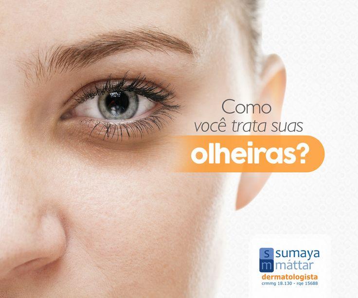 Sabia que há vários tipos de olheira? E cada uma delas tem um tratamento mais adequado: leia sobre cada um deles em http://sumayamattar.med.br/p…/olheira-cuidados-e-como-tratar. Procure mais orientações com um dermatologista.
