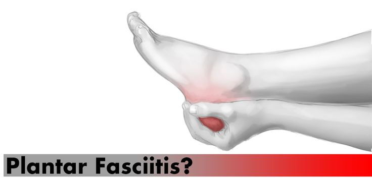 Shoes We Use for Plantar Fasciitis: What Works, What Hurts