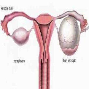 Ovary Inflammation Natural Treatment
