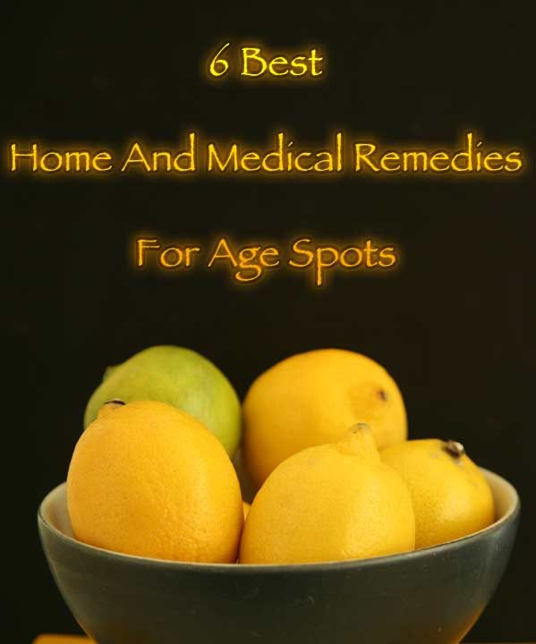 How To Remove Age Spots – 6 Best Home And Medical Remedies ...