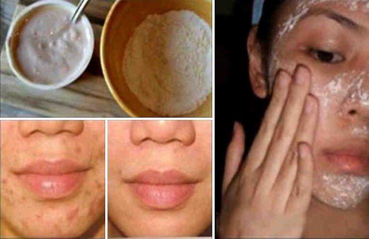 Elimina Manchas, Arrugas Y Pecas Con Este Secreto Japonés. Un sano cuidado del rostro es fundamental a la hora de verse bien, y basta con que te laves la cara al menos dos veces al día, esto garantiza que limpies todas las impurezas del cutis de forma natural, sobre todo si sueles maquillarte.  Ho