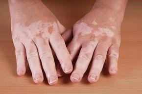 - Aprenda a preparar essa maravilhosa receita de Tratamentos naturais para o vitiligo