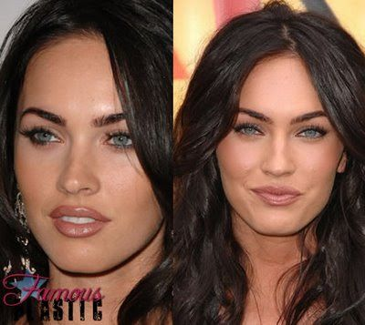 Megan Fox Plastic Surgery Before After Always interesting what you can find when you type in elective surgery and other related terms