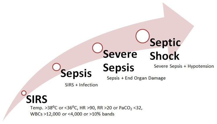 Sepsis...where was this before my last test?!?!?
