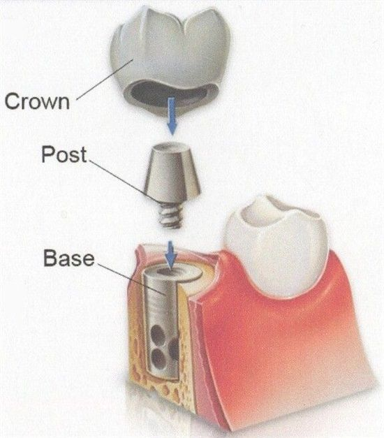 The 3 Parts of a Dental Implant: Crown - Post – Base #DentalImplants http://bayareaimplantdentistry.com/ #dentistry #implant