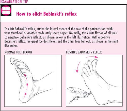 babinski | Definition of « Babinski reflex »