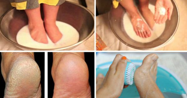 Хватит тратить деньги на педикюр: эти 2 простых продукта сделают твои ножки идеальными! — В РИТМІ ЖИТТЯ