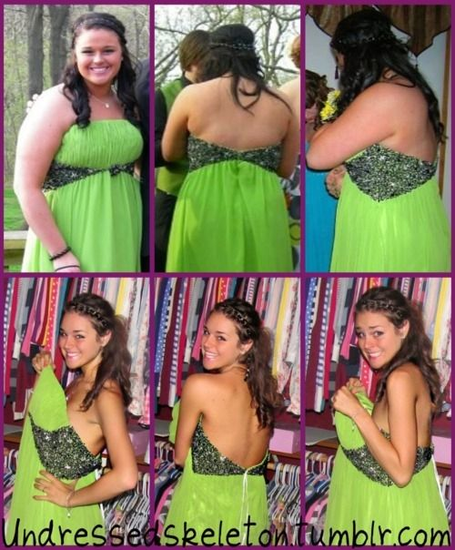 107 Best Teenage Weight Loss Images On Pinterest