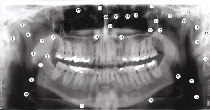 Fmx Radiographs Relate...