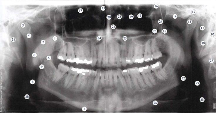 Full Mouth Xray 39