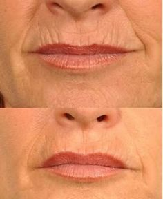 Here's how to get rid of lip wrinkles and lip lines using ...