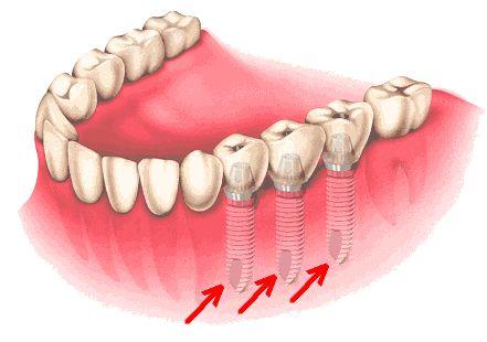 Les 22 meilleures images du tableau mutuelle dentaire sur - Mutuelle implant dentaire sans plafond ...