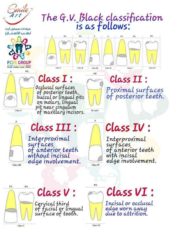 "مبدعات طب الأسنان ❤ on Twitter: ""The G.V. Black classification ..."