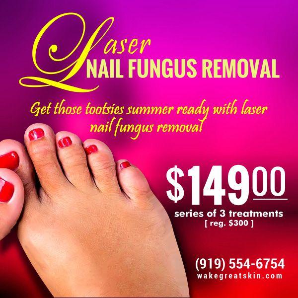 laser nail fungus removal