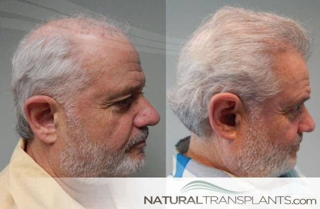 Best Hair Loss Treatment for Men | Hair Transplant Before and After