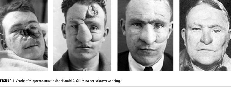Sir Harold Gillies, pionier van plastische chirurgie  https://www.ntvg.nl/artikelen/sir-harold-gillies-pionier-van-plastische-chirurgie/volledig  Gillies creëerde zo het specialisme van de plastische en reconstructieve chirurgie