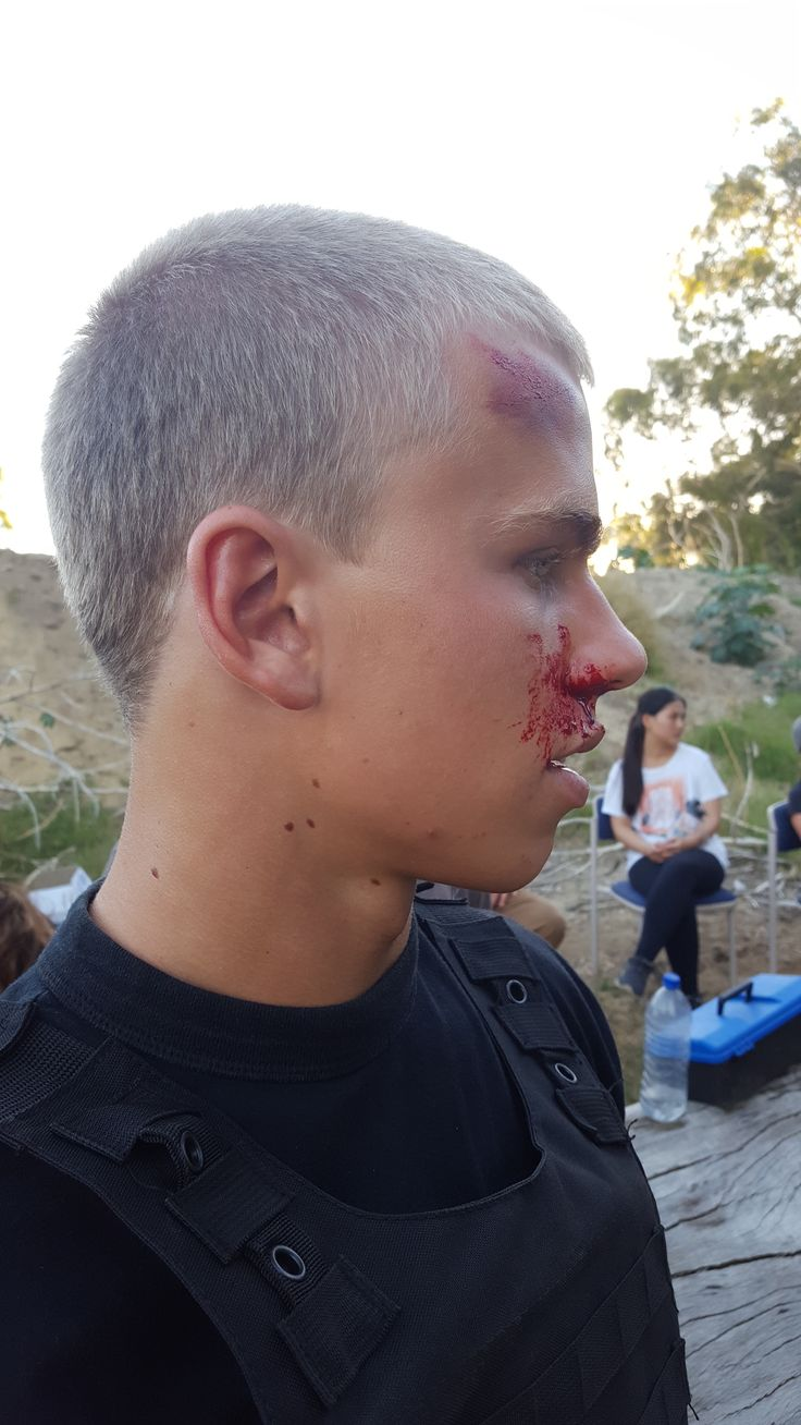 Special effects makeup on set for a film || cuts and bruises side view || by Ashleigh Hunter