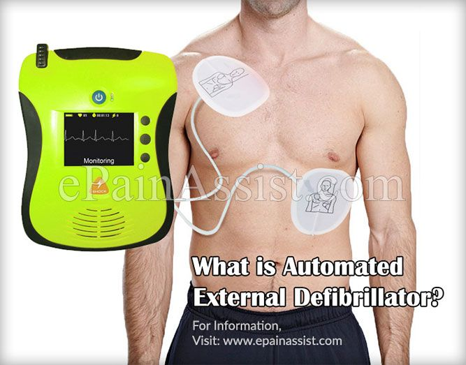 What is Automated External Defibrillator?