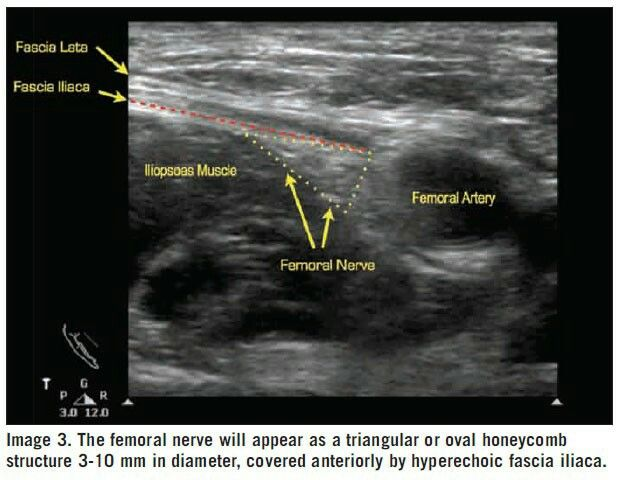 15 best images about femoral nerve block on pinterest | health, Muscles