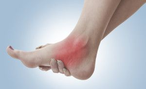 How to treat a sprained ankle | Affinity Health System