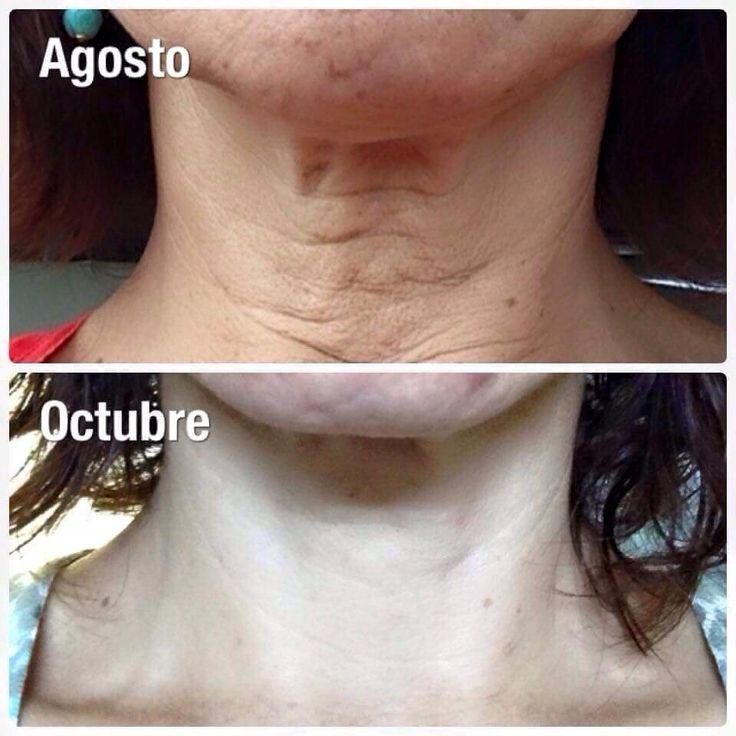 Mira los resultados de Nerium en el área del cuello, impresionante http://beautyskin1.nerium.com.mx