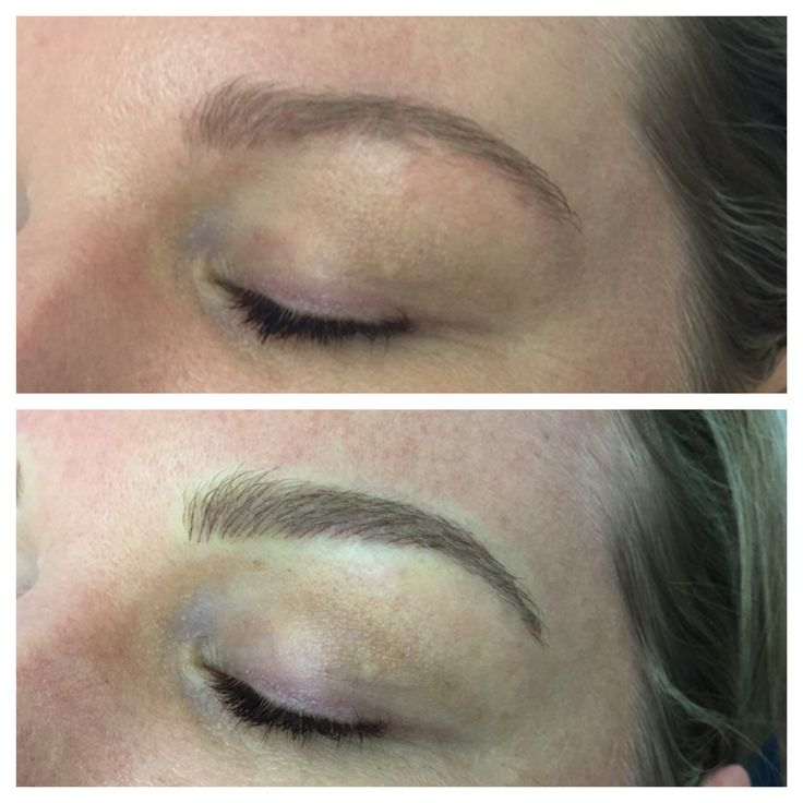 Brow Embroidery immediately after first session, building strength in the right places
