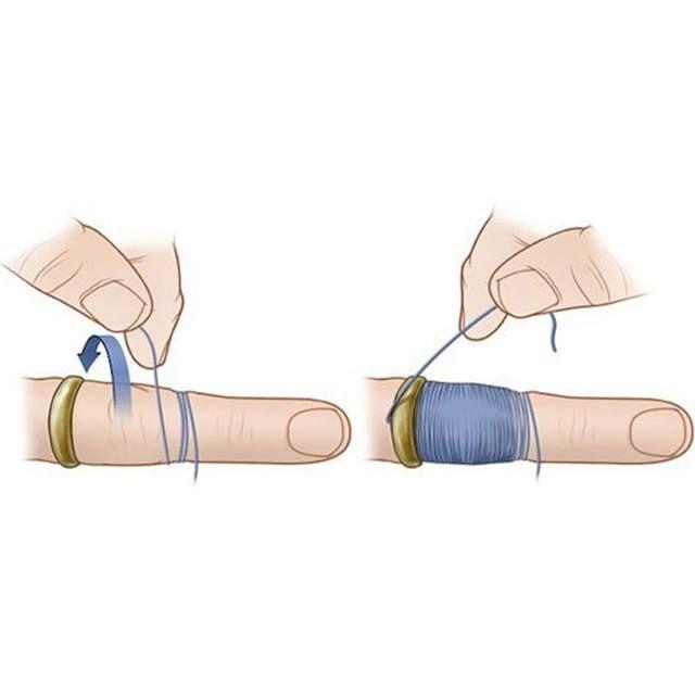 Comment enlever une bague coincé: enfilé votre doigt de fil dentaire et faites-le passer en dessous de la bague à l'aide d'une épingle de sûreté. Au bout du doigt, près de l'ongle, faite un noeud avec le bout restant. Tirer de gauche à droite jusqu'à l'extrémité du doigt. La bague serait sensé avancé peu à peu jusqu'à ce qu'elle soit complètement retirée. Bingo!