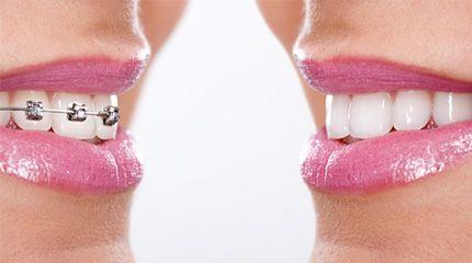 Clínicas Dentales SODEIN - Brackets Ortodoncia