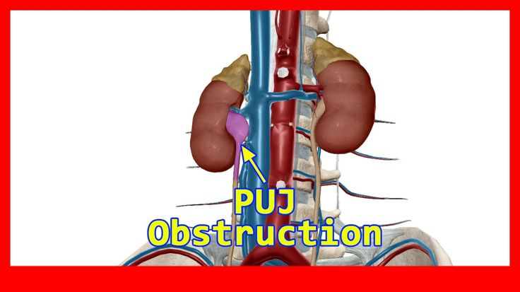 Surgical Management for PUJ Obstruction (Laparoscopic Pyeloplasty) by Dr...