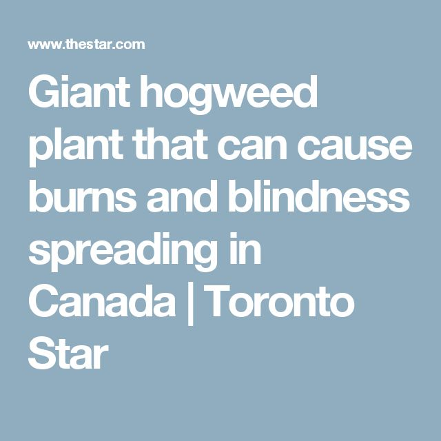 Giant hogweed plant that can cause burns and blindness spreading in Canada | Toronto Star