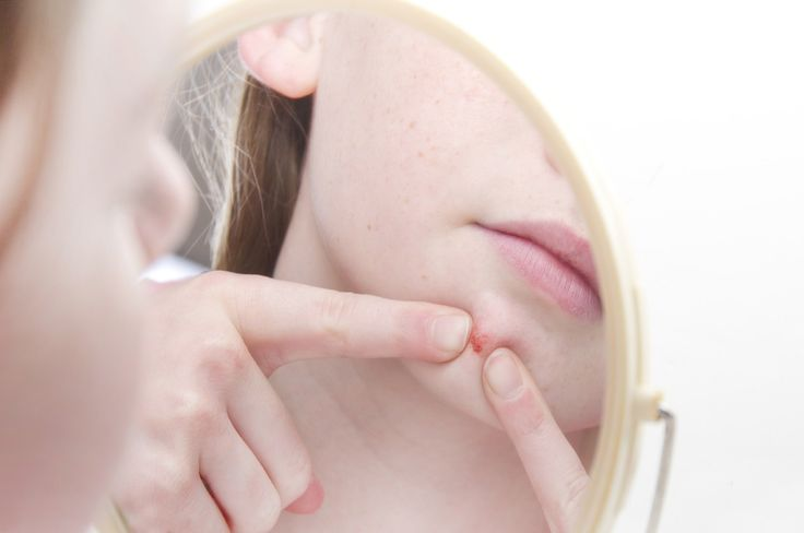 How to get rid of Cystic acne? It forms deep under the layer of skin where most pimples come to a head. This is what results in that hard painful bump.