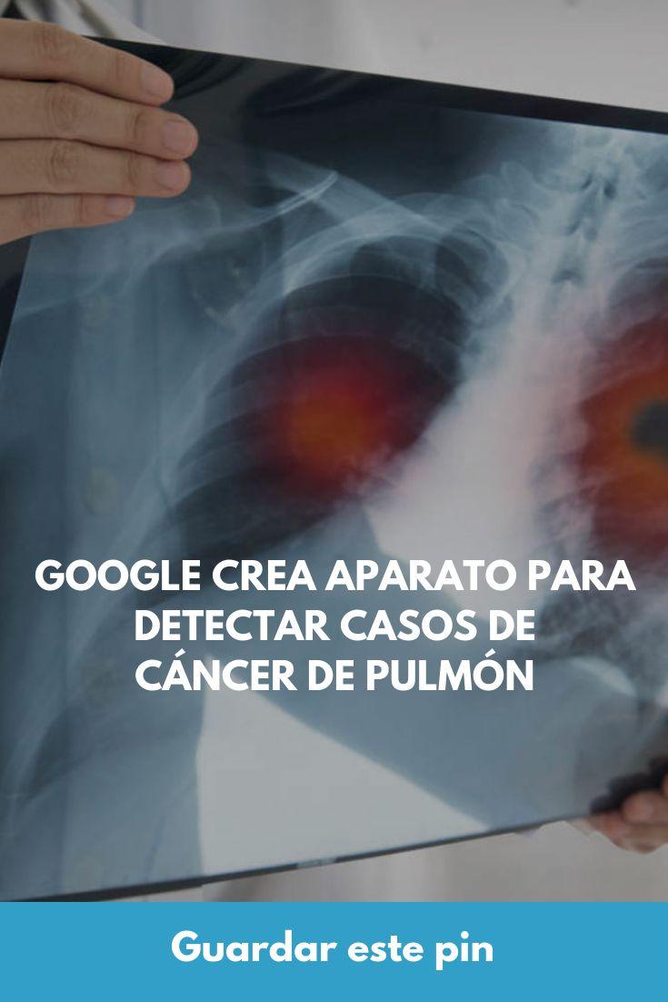 Google crea aparato para detectar casos de cáncer de pulmón