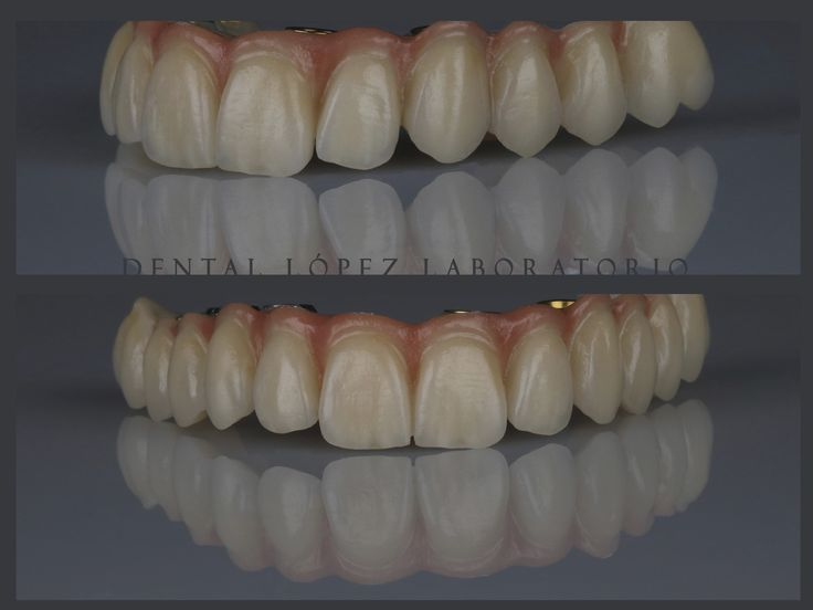 #dental #dentalopez