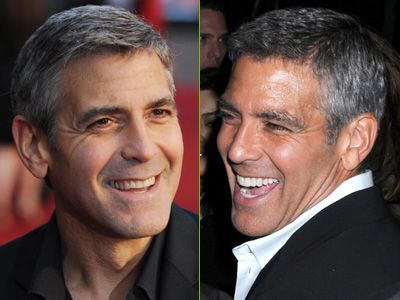 George clooney cosmetic dental surgery before and after